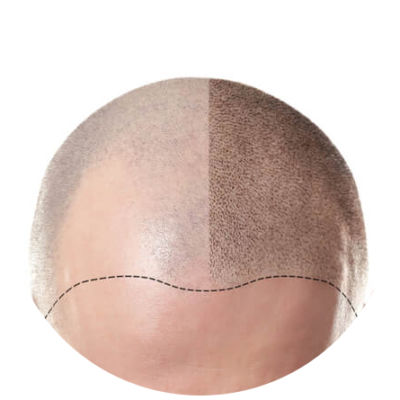 hair transplant surgery in Hyderabad