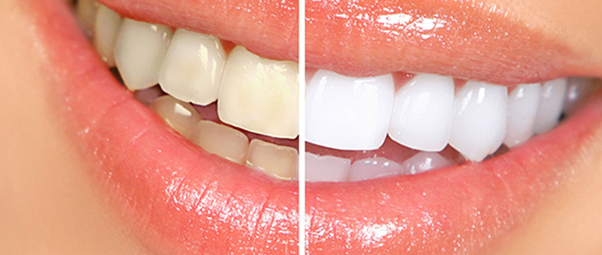 Teeth Bleaching in Banjara Hills, Hyderabad
