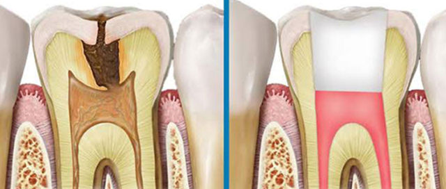 Best Root canal Treatment in Hyderabad and banjarahills
