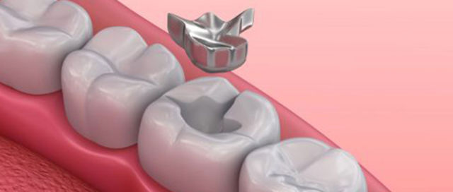 Best Dental Clinic in Hyderabad and banjarahills