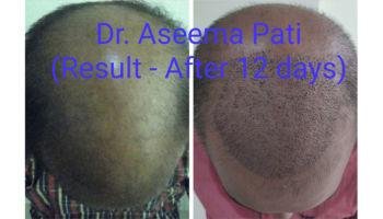 FUE-Hair-Transplantation_4