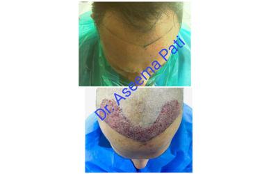 FUE-Hair-Transplantation_2