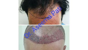 FUE-Hair-Transplantation_3