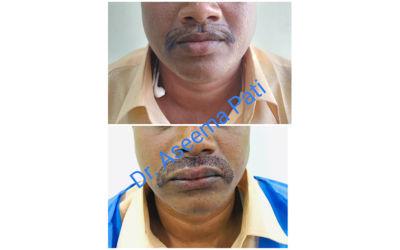 Mousetac-Transplantation